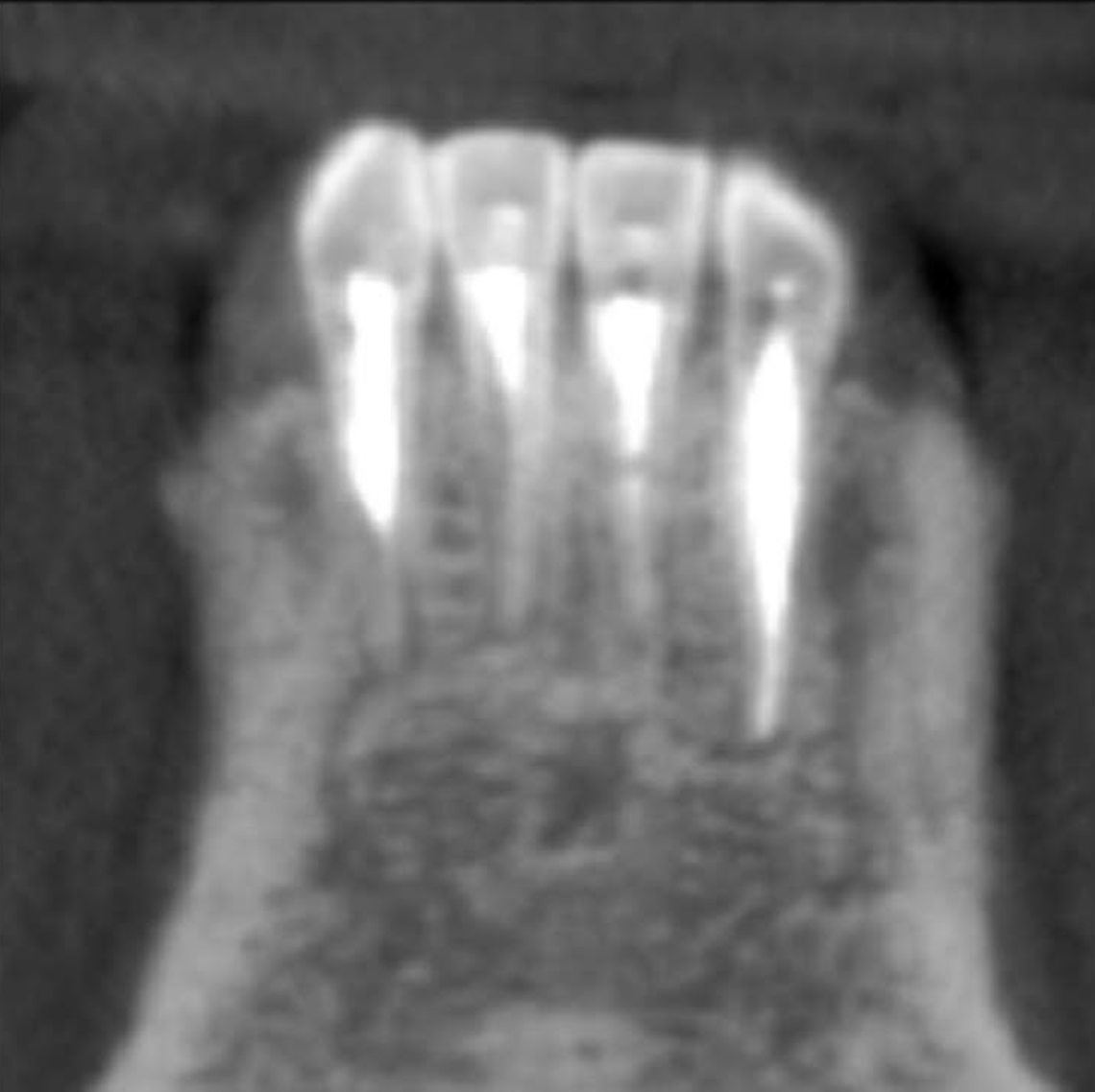 A. Miller Case Study: 2 year postop CBCT-Sagittal View | Sonia Chopra DDS - Endodontic Education