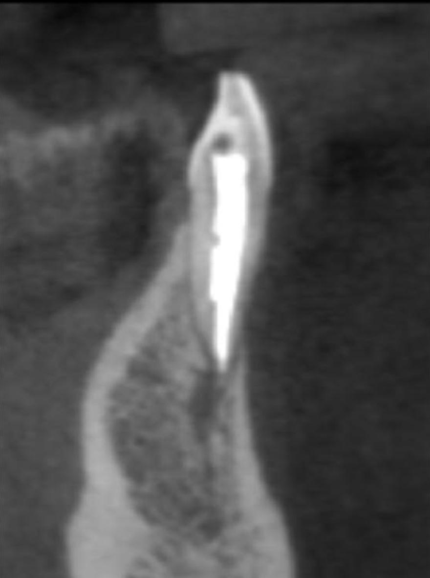 A. Miller Case Study: 2 year postop CBCT-Coronal View | Sonia Chopra DDS - Endodontic Education