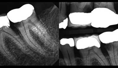 Tooth Story #3: Sometimes The Best Treatment Plan Is To Do Nothing – Except Listen