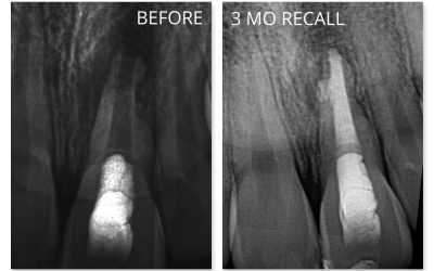 Tooth Story #7: Endo with a Dash of Hope