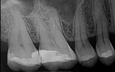 Tooth Story #9: MB2 Problems, The Struggle is Real