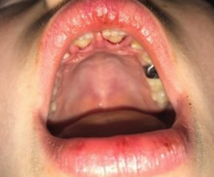 young dental trauma patient