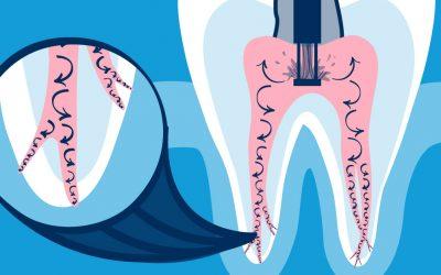 The Future of Endodontics: GentleWave Procedure
