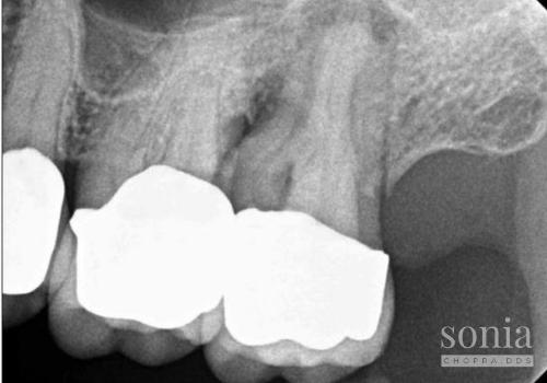 tracing the sinus tract radiograph 1