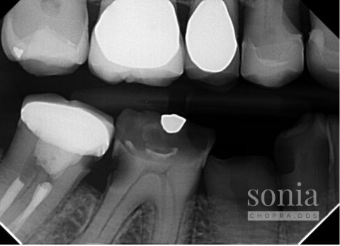 Referrals Radiograph 3