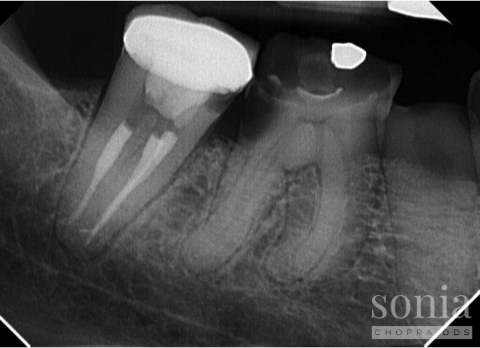 Referrals and restorability radiograph 1