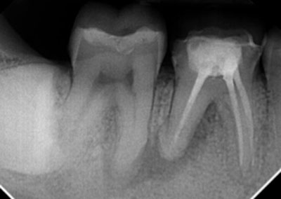 Tooth Story #16: The Root of Diagnosis – Which Tooth Is It?