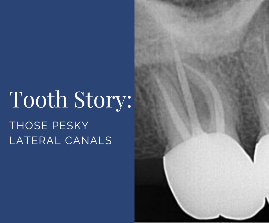Those Pesky Lateral Canals