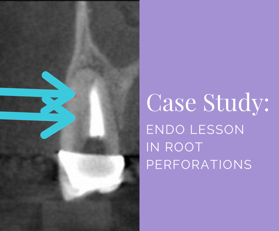 Endo Lesson Root Perforations