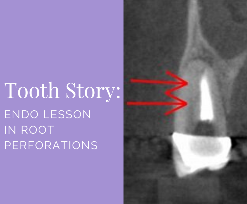 Endo Lesson in Root Perforations Blog