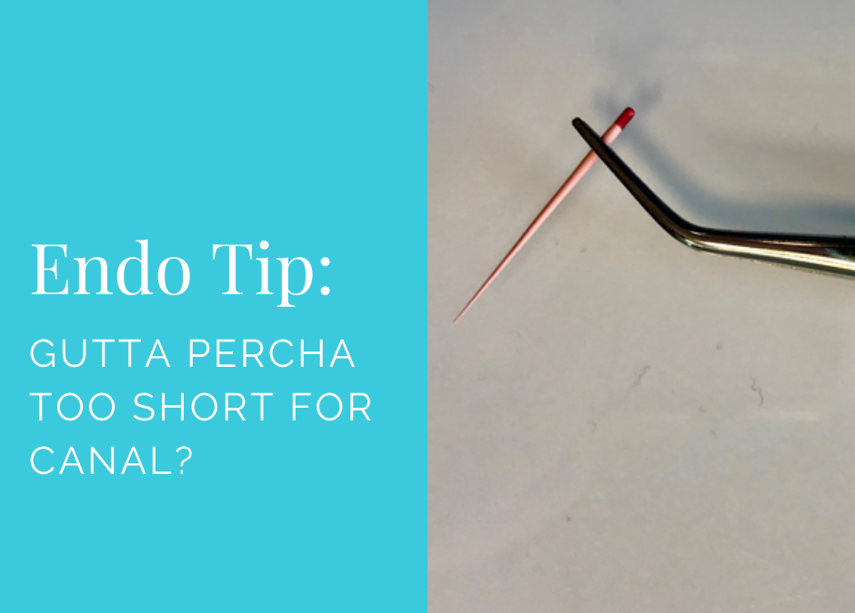 Endo Quick Tip: Gutta Percha Too Short for Canal?
