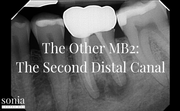 The Other MB2: The Second Distal Canal