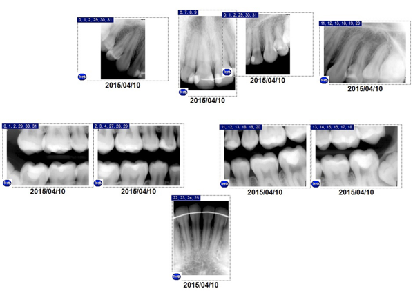 radiographs from the patient's general dentist