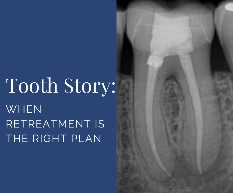Tooth Reterat When Retreatment Is the Right Plan