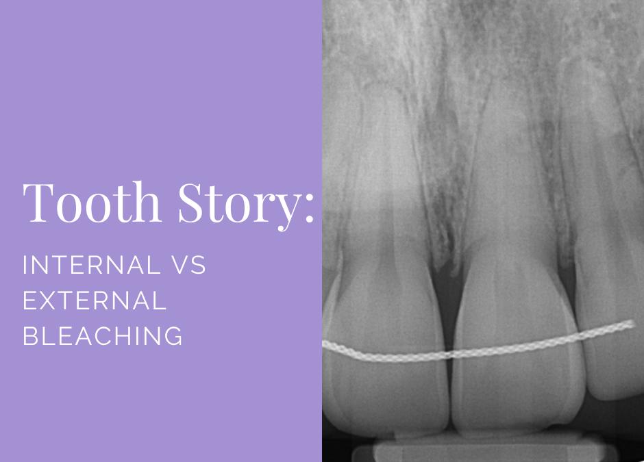 Internal vs External Bleaching