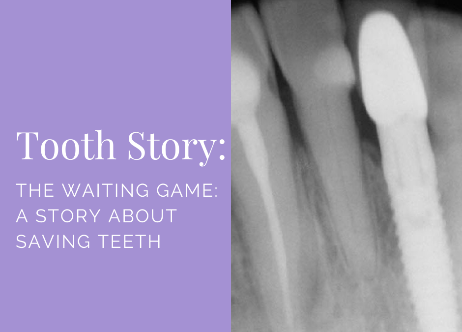 The Waiting Game (A Story About Saving Teeth)