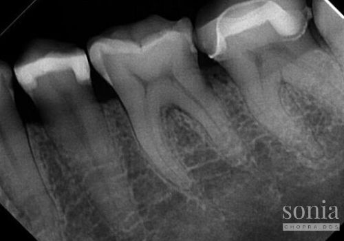 radiograph evaluating the problem