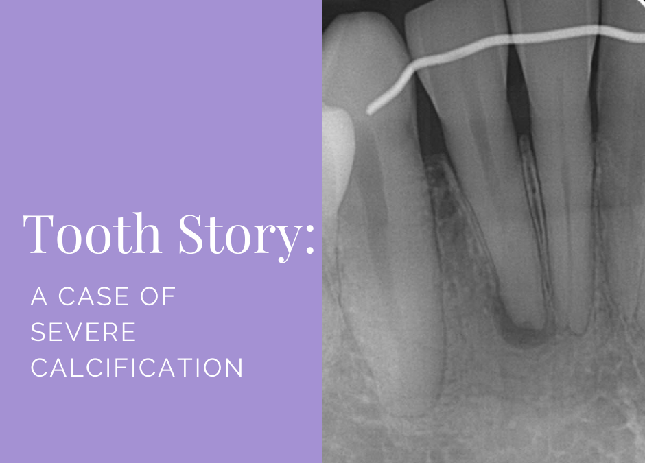 Tooth Story: A Case of Severe Calcification