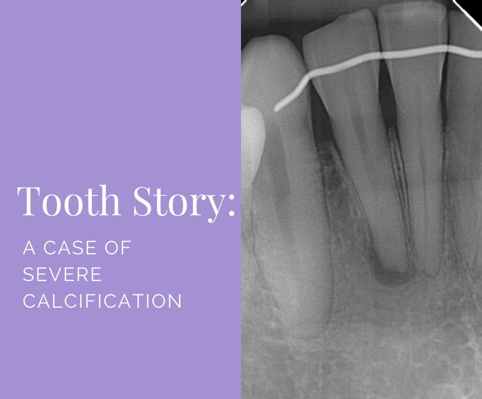 Tooth Story - severe calcification title image