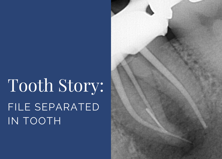 Tooth Story: File Separated in Tooth