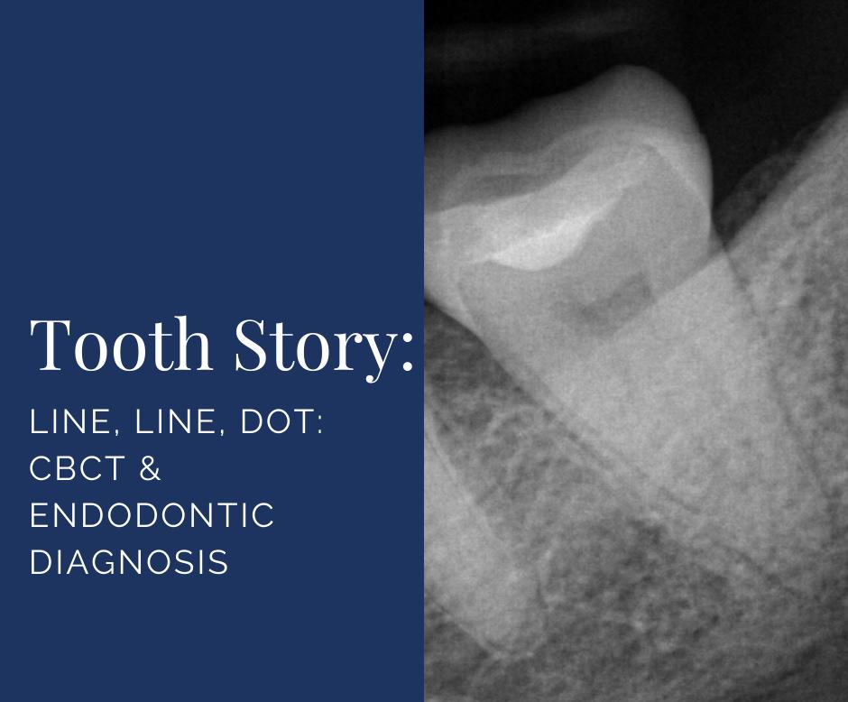 Line, Line, Dot: CBCT & Endodontic Diagnosis