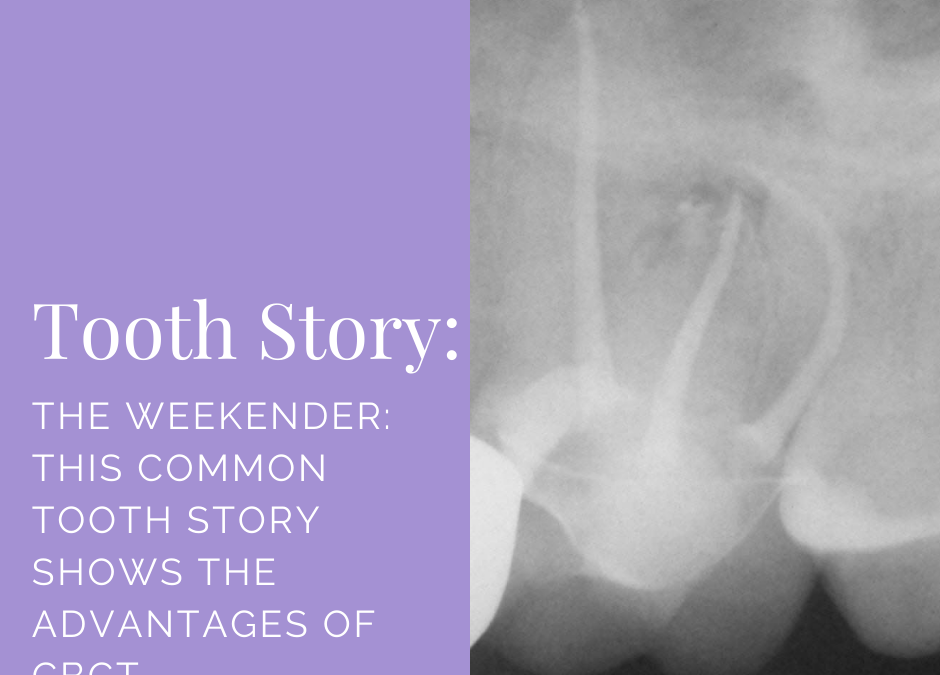 The Weekender: This Common Tooth Story Shows Advantages of CBCT