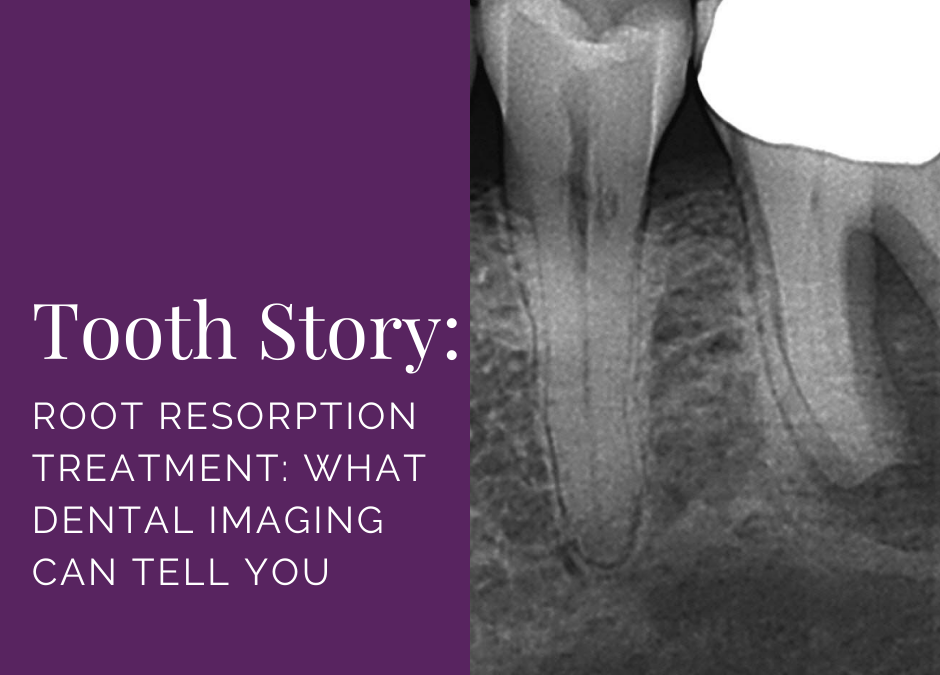 Root Resorption Treatment: What Dental Imaging Can Tell You