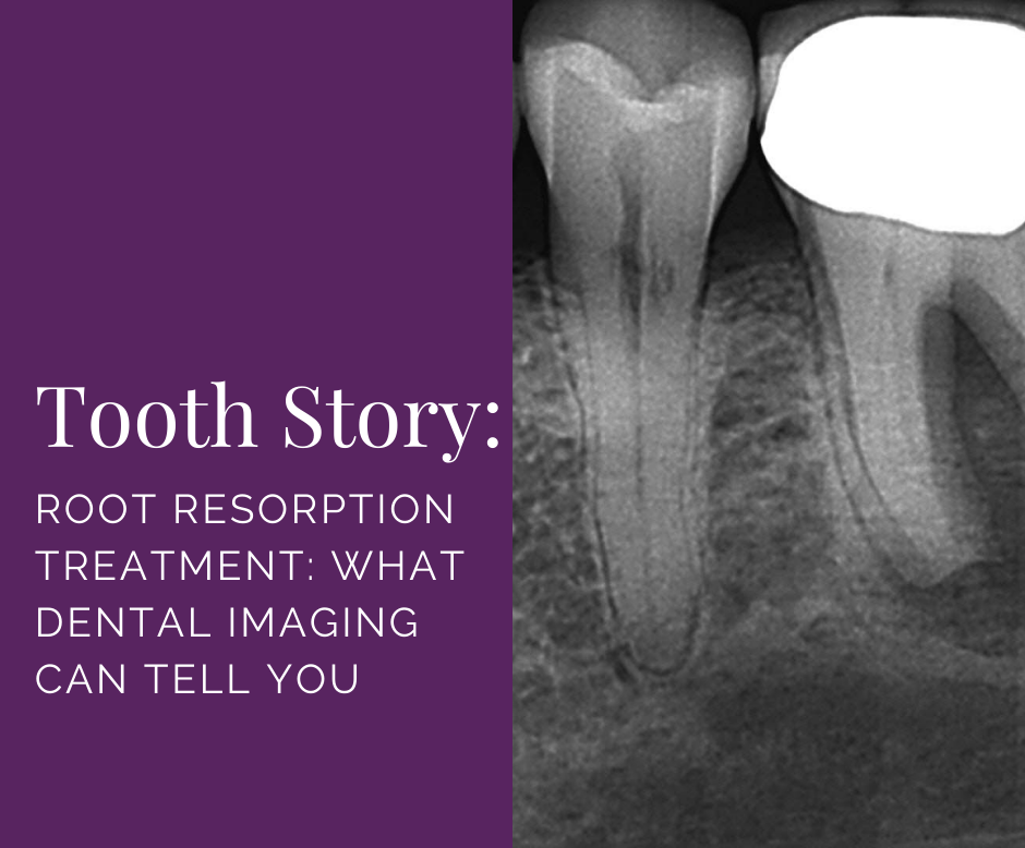 Root resorption treatment