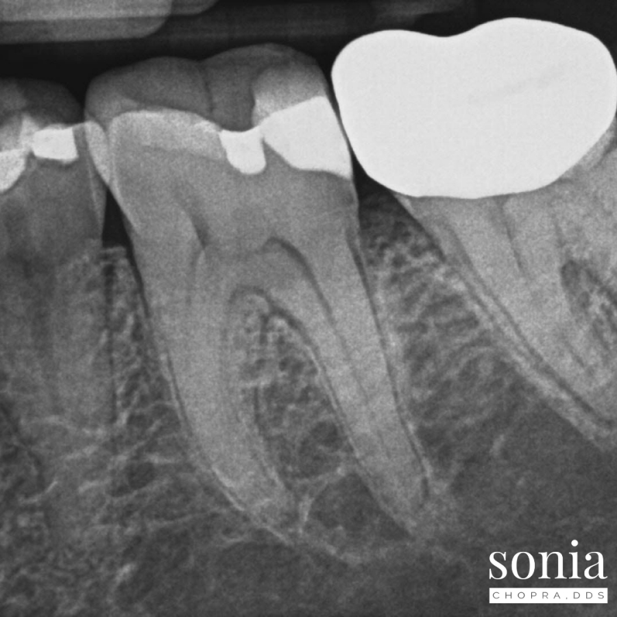 Swelling and a Vital Tooth