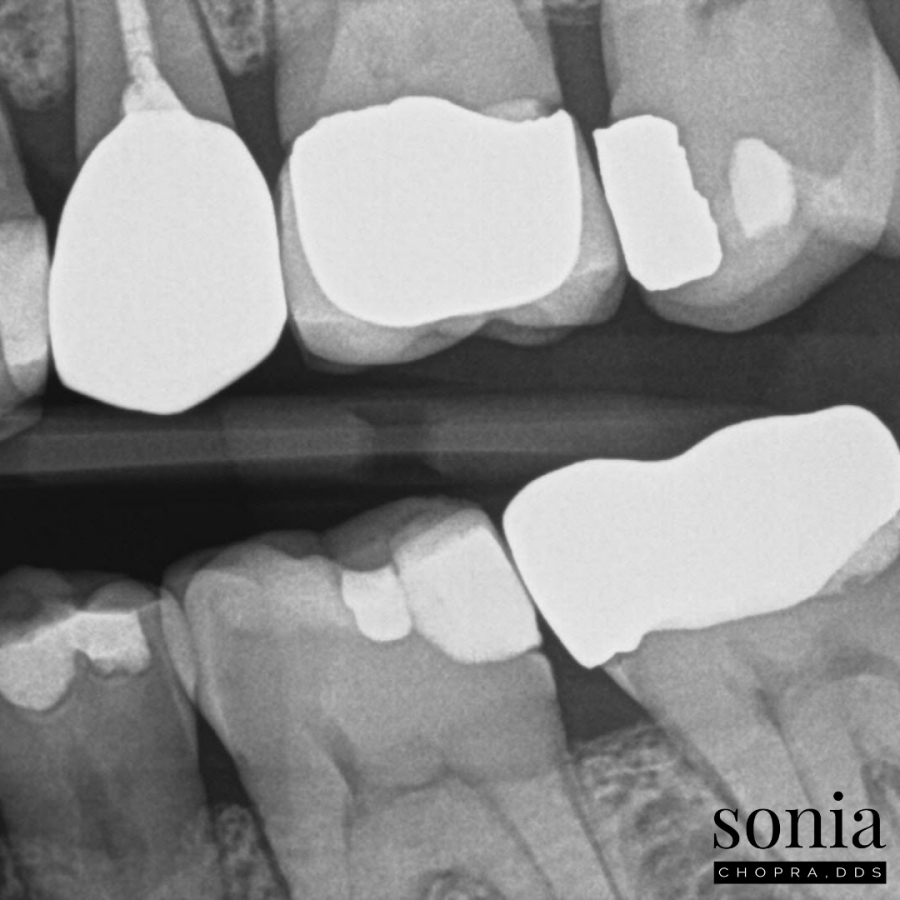Swelling Tooth