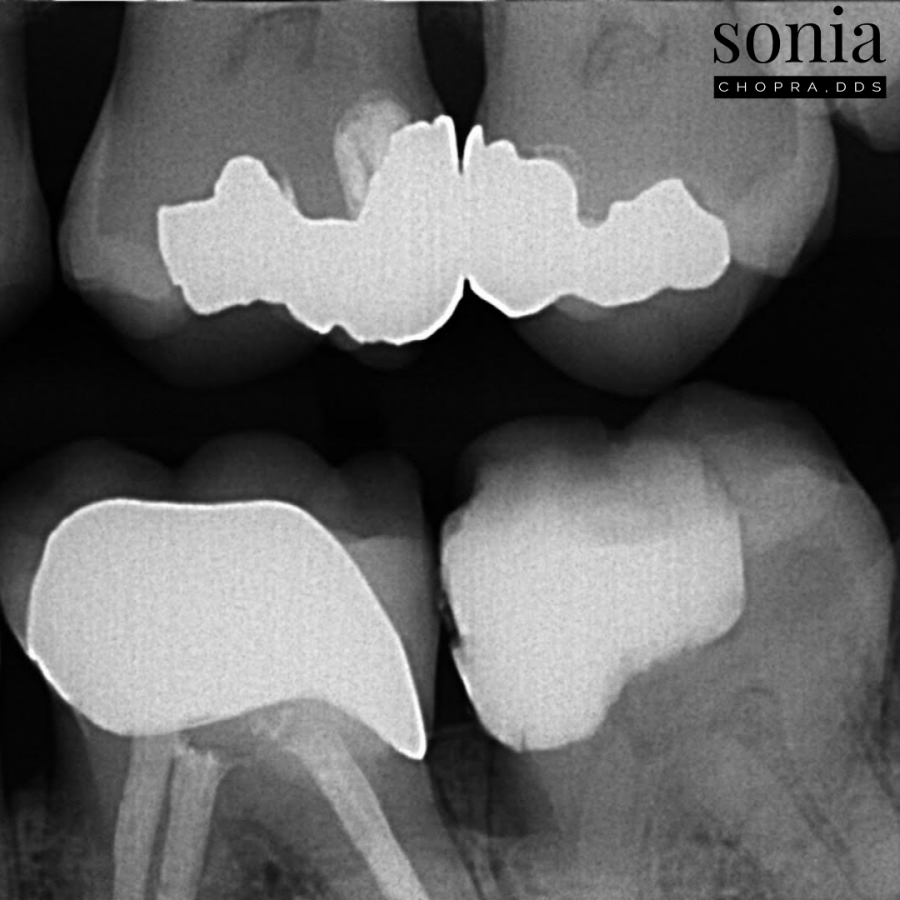 cold test tooth story
