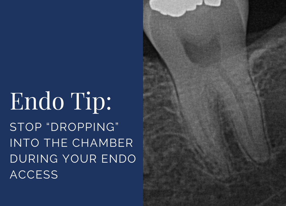 """Stop """"Dropping"""" Into the Chamber During Your Endo Access"""