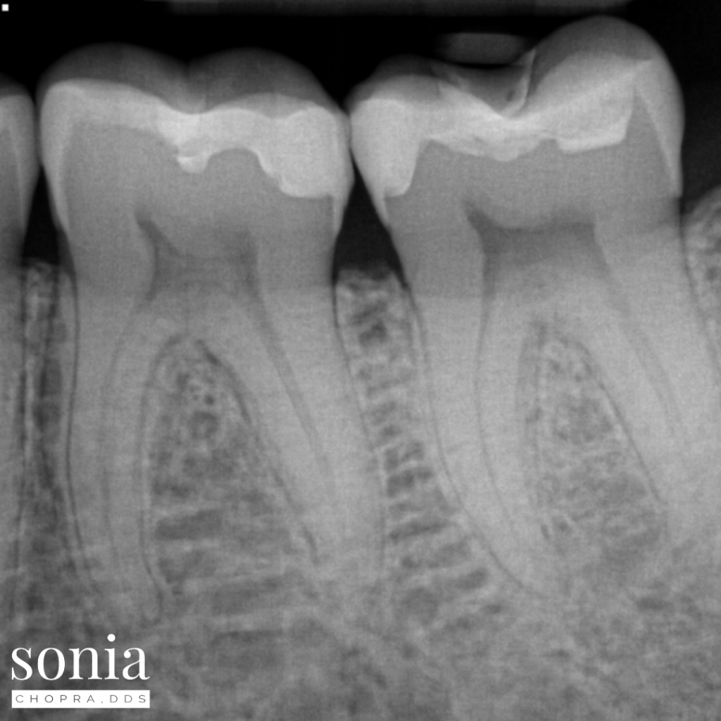 cracked tooth diagnosis