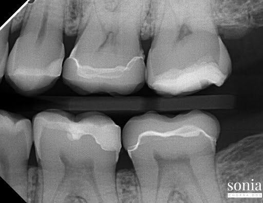 tooth pain diagnosis