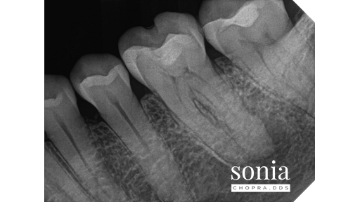hypercementosis root canal treatment Radiograph 2