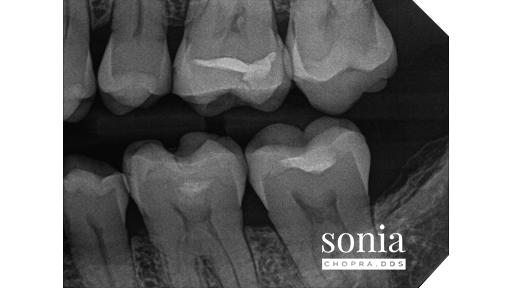 hypercementosis root canal treatment Radiograph 3